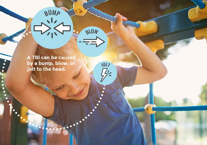 A young boy swings on playground equipment, and a graphic overlay depicts how a bump, blog, or jolt can cause a TBI.